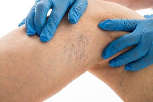 Alleviare il dolore causato dalle varici