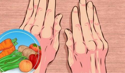 Artrite: ecco i 10 cibi che alleviano i sintomi
