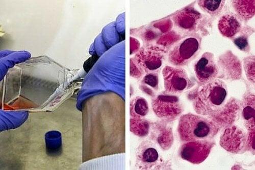 cellule-leucemia