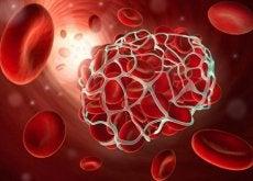 trombosi e embolie