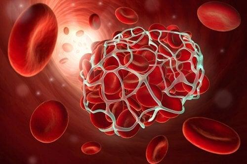 9 alimenti per prevenire embolie e trombosi