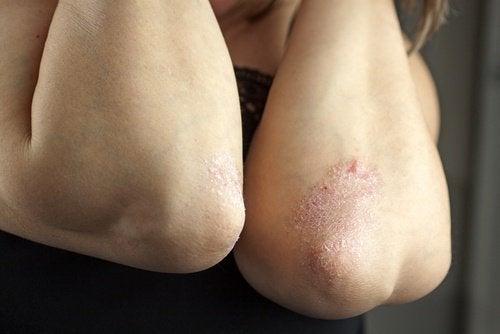 Allergia alla pelle