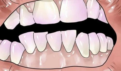 Eliminare il tartaro dai denti in modo naturale