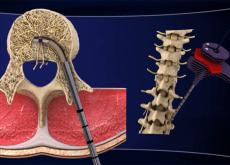 trattamento lombalgia cronica