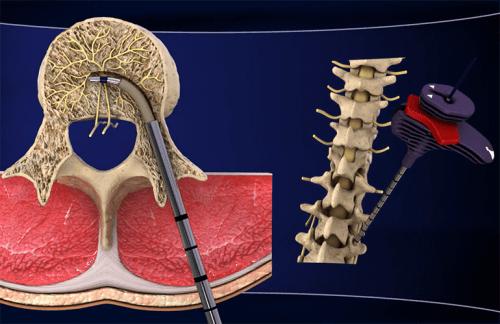 Nuovo trattamento contro la lombalgia cronica