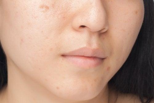 viso-con-acne