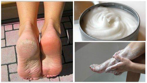 Rimedio naturale per eliminare funghi e calli dai piedi