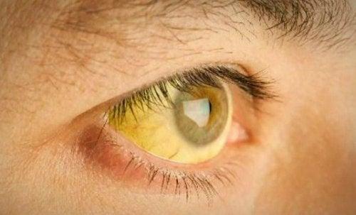 occhi gialli a causa di un eccesso di tossine nel corpo