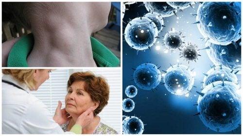 Linfoma: tumore silenzioso che può essere curato grazie alla diagnosi precoce