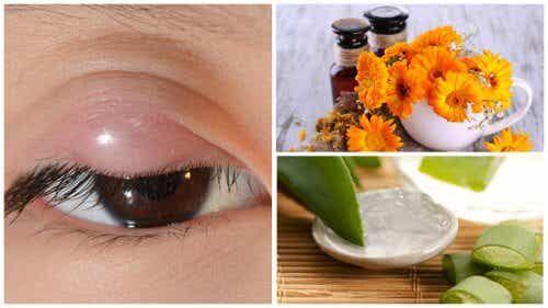 L'orzaiolo: 7 rimedi naturali per alleviarne i sintomi