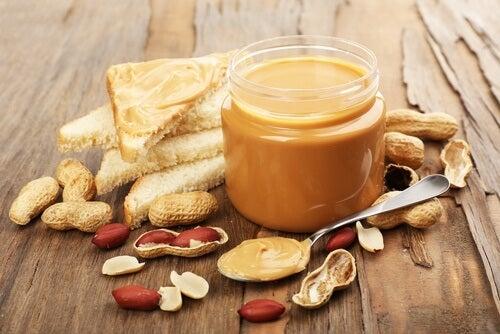 arachidi tra le cause dell'emicrania