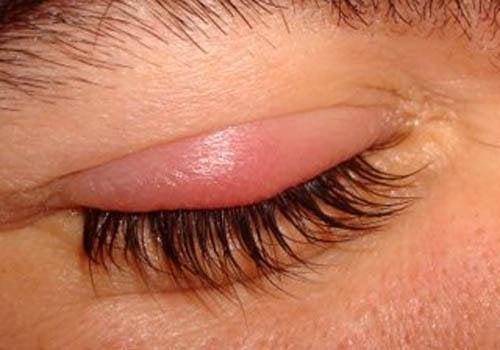 8 rimedi efficaci per curare l'orzaiolo
