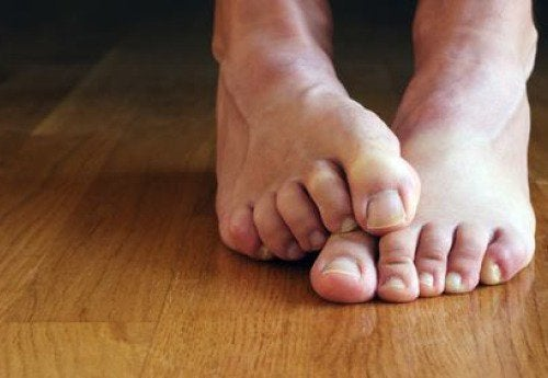 Funghi nelle unghie dei piedi
