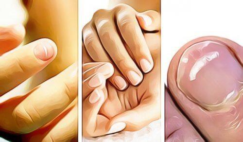 5 caratteristiche delle unghie che indicano un problema di salute