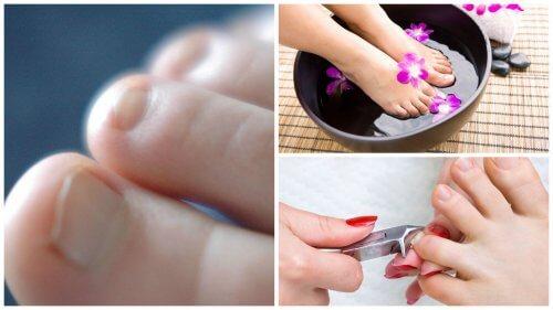 7 cose da sapere sui funghi nelle unghie
