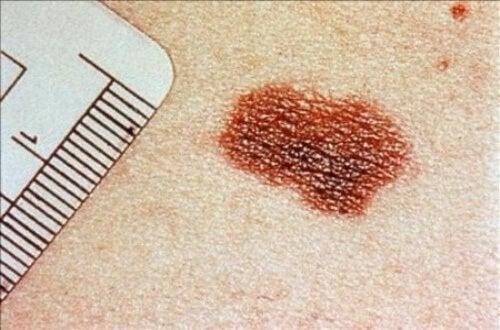 Tumore della pelle: segnali da non sottovalutare