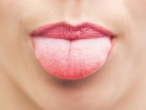 la lingua biancastra