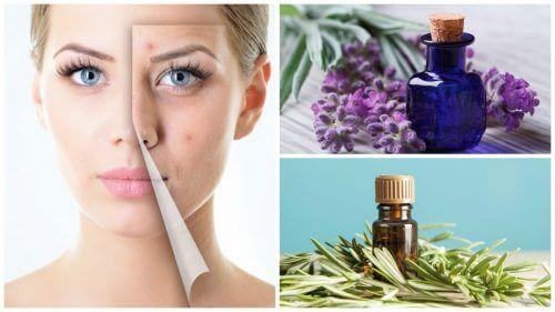 Trattare l'acne con oli essenziali