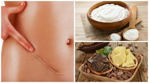 I 7 migliori rimedi naturali per ridurre le cicatrici