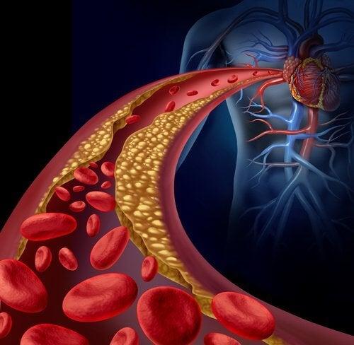 arteriosclerosi a causa dell'opertensione