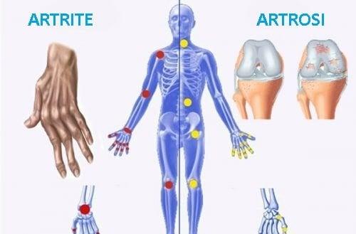 Artrosi e artrite, differenze