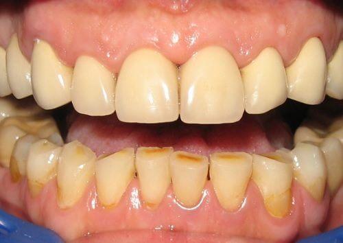 10 modi di eliminare la placca dentale in modo naturale