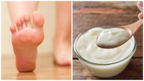Eliminare i duroni ai piedi con rimedi naturali