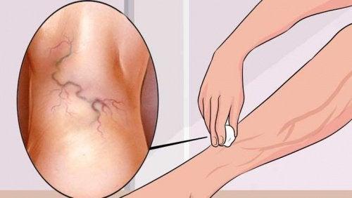 Trattare le vene varicose: ecco 8 esercizi