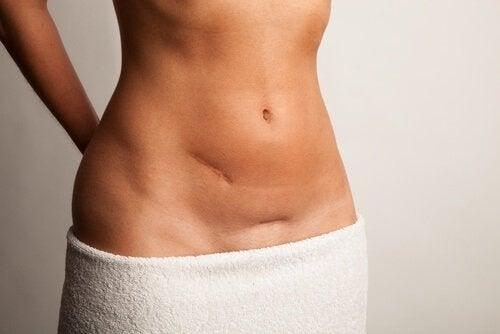 La vaselina aiuta a trattare le cicatrici