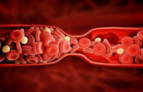 Nuovo trattamento per combattere il colesterolo cattivo