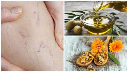 Combattere le vene varicose con olio d'oliva e calendula