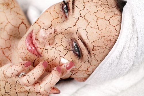 Come trattare la pelle secca del viso