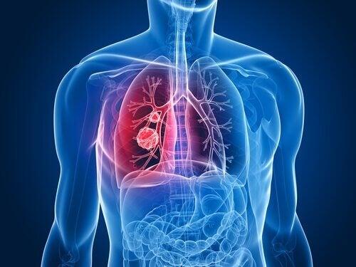 Ridurre gli effetti collaterali della chemioterapia del tumore al polmone