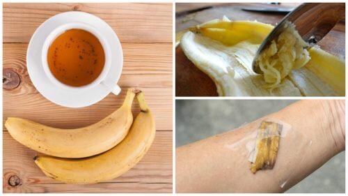 5 modi per utilizzare la buccia di banana come rimedio naturale