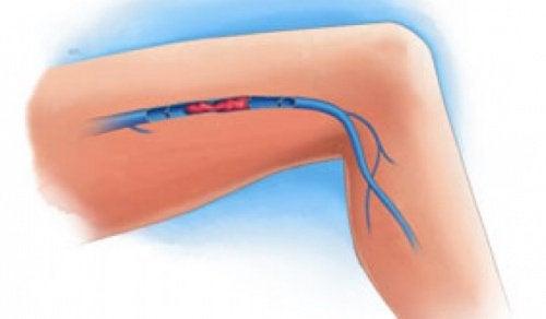 Trombosi venosa alla gamba