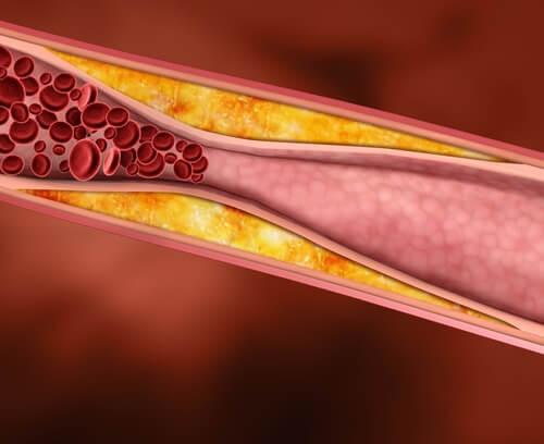 I migliori trattamenti naturali per il colesterolo alto