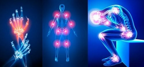 Dolori alle articolazioni, i sintomi cui prestare attenzione