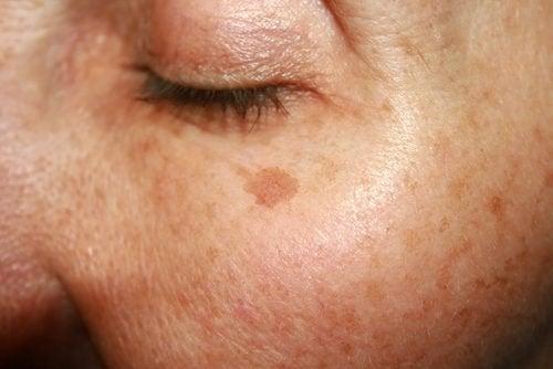 le macchie dell'età sul viso