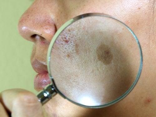 Cloasma: 7 trattamenti naturali per contrastarlo