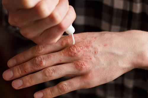 Trattare la psoriasi: 6 creme naturali