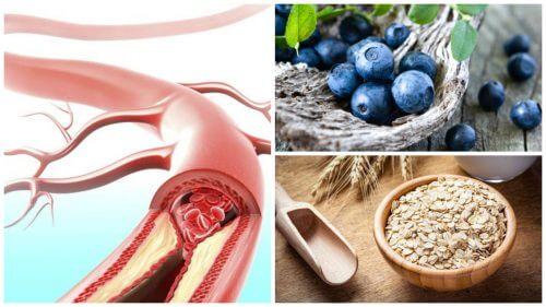 Migliorare la salute arteriosa grazie a 9 alimenti