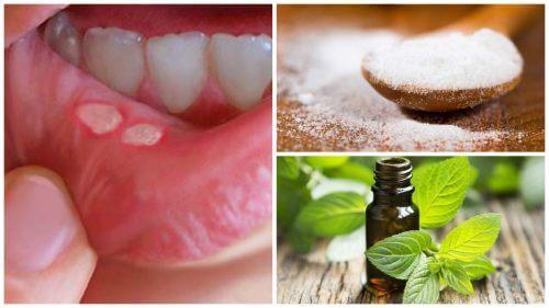 7 rimedi naturali per le afte