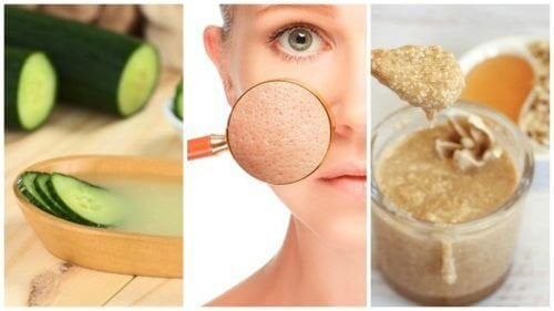5 rimedi naturali per chiudere i pori dilatati