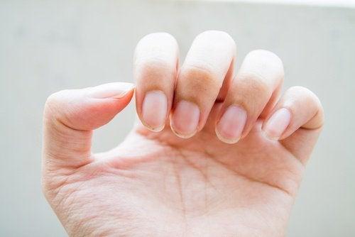 problemi alle unghie delle mani