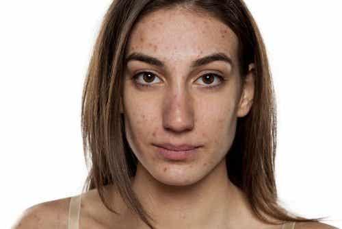 Vicks Vaporub per ridurre l'acne, un potente rimedio