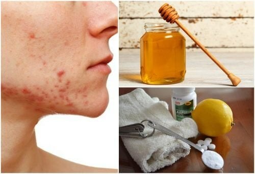 6 rimedi naturali contro l'acne cistica