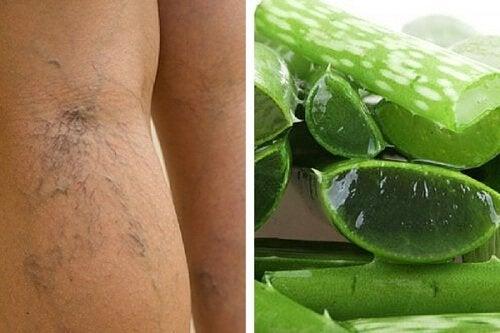 Aloe vera e vene varicose