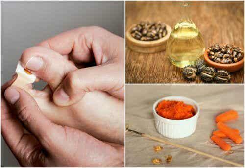 Patereccio: 8 rimedi naturali per combatterlo