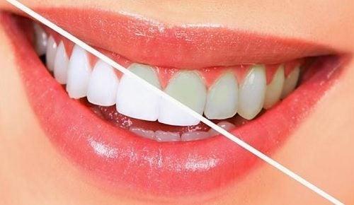10 alimenti per sbiancare i denti in modo naturale