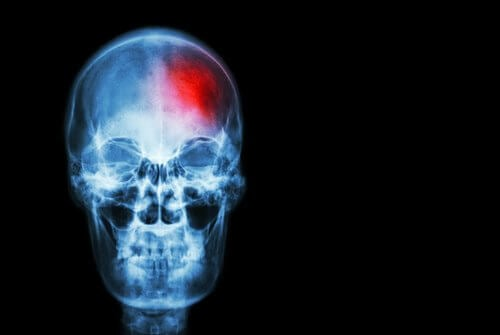 È possibile prevenire un accidente cerebrovascolare?